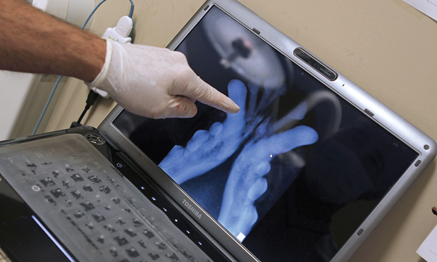 Vet Pointing to Medical Monitor